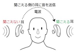 片耳 難聴